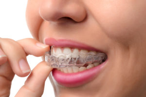 clear braces - invsalign treatment